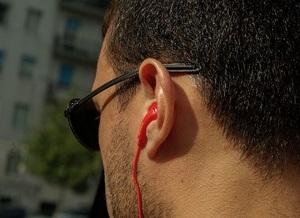 Ученые назвали хороший слух признаком болезни