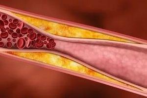 Холестерина в продуктах бояться не надо, уверяют врачи