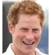 Специалисты выяснили, как принц Гарри борется с облысением