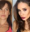 Скандал Лены Миро и Айзы Анохиной о липосакции опутал все соцсети