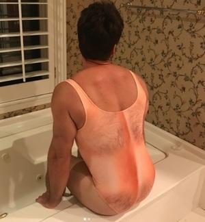 В сети горячо обсуждают купальники с принтом мужской волосатой груди