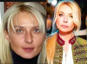 Татьяна Овсиенко стала неузнаваемой от пластики и