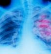 Онкологи назвали самые первые признаки опухоли легких