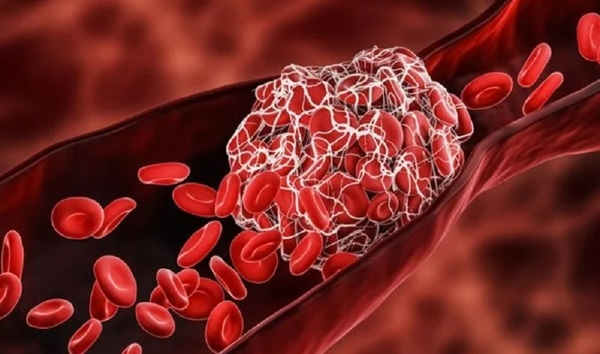 Британские врачи назвали семь главных признаков тромбоза